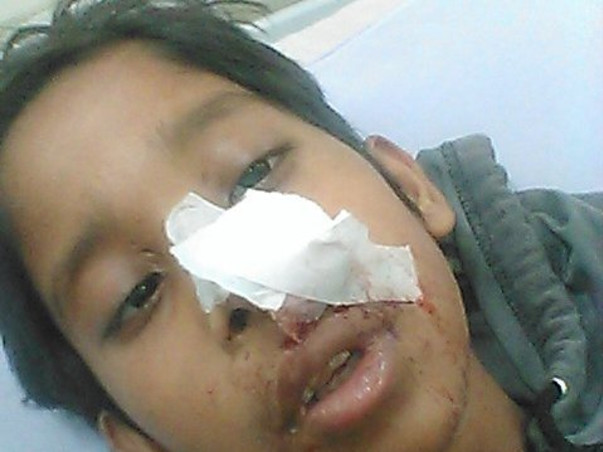 12 Years Old Ankit Needs Your Help Fight Grade 4 Brain Cancer