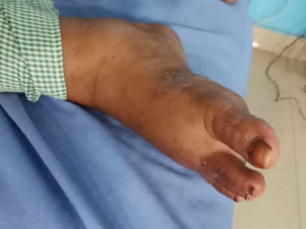 Help Anam Fatima Undergo Kidney Transplant
