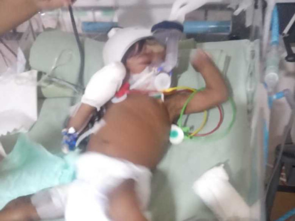 Baby Of Sowramya Needs Your Help To Recover From Atrial Septal Defects