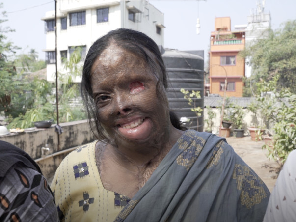 Giving New Hope To India's Acid Attack Victims