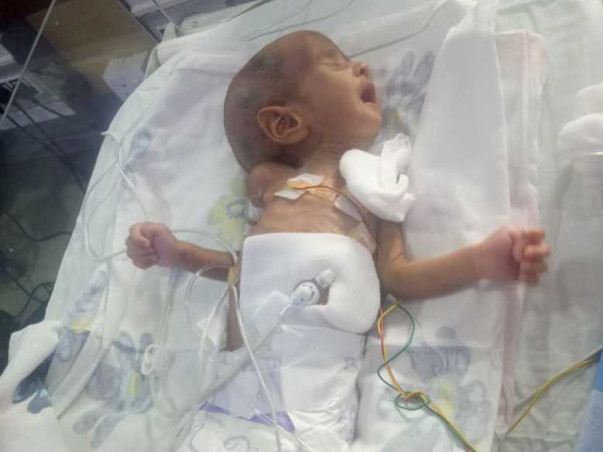 This 4 Months Old Needs Your Urgent Support In Fighting Septicaemia
