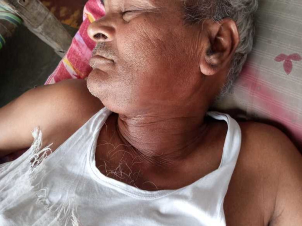 My Grandfather Is Struggling With Throat Cancer, Help Him