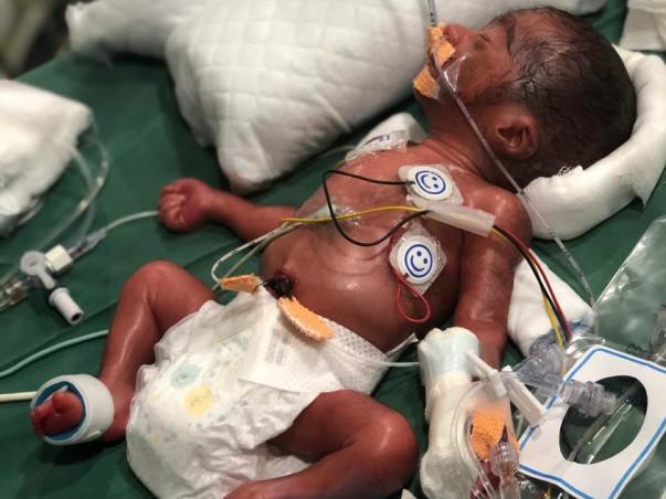 Help Critical Pre Term Baby Boy admitted in NICU