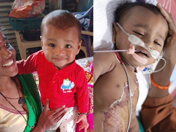 A Boiling Pot Of Water Fell On This 9-Month-Old, Burning Half His Body