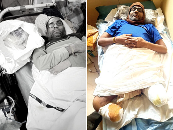 Help Kamlesh to recover after losing both of his legs