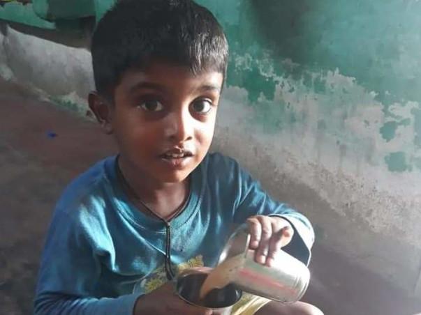 Help 4 Years Old Lakshan Undergo Brain Surgery