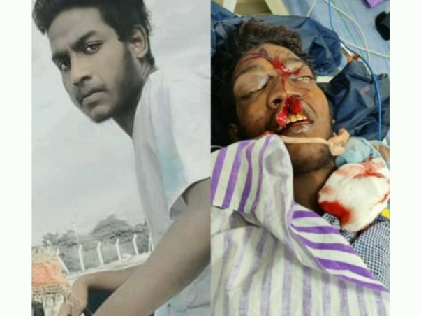 Help Kakinada shiva Recover From Road Accident