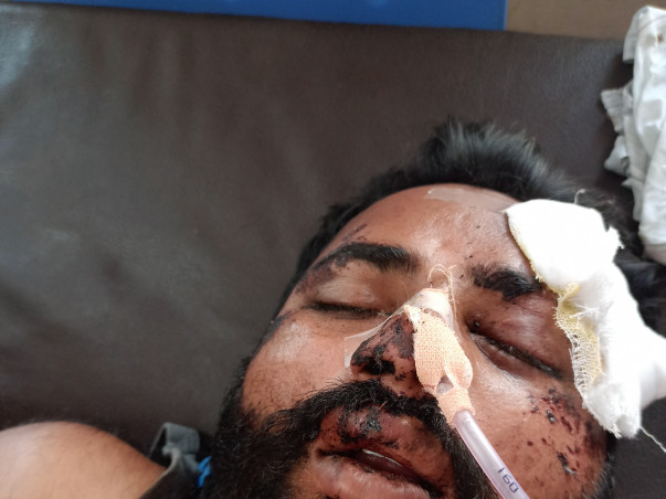 Support Kuldeep Laxmanrao Nilapalle Recover From Road Traffic Accident