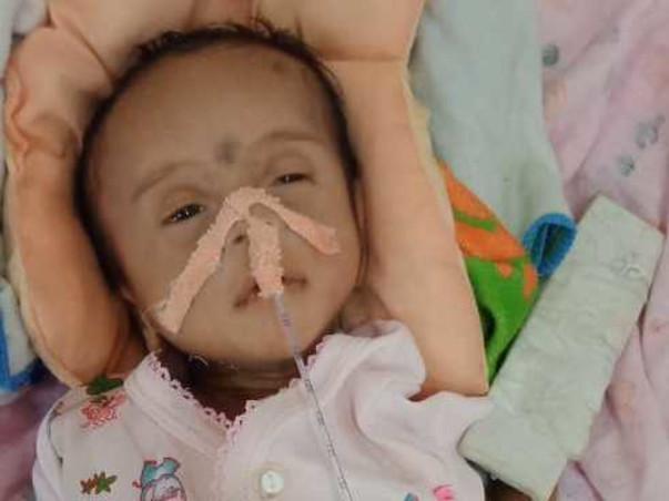 Help Ayansh For Open Heart Surgery