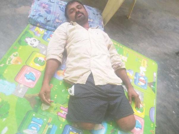 Nagaraju Needs Your Urgent Support For Artificial Limb And Livelihood