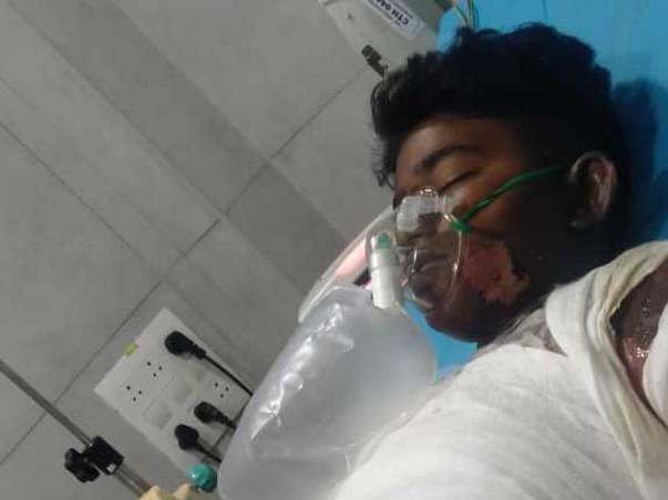 Help My Nephew Shyam Sundar Fight Electric Burn Injury