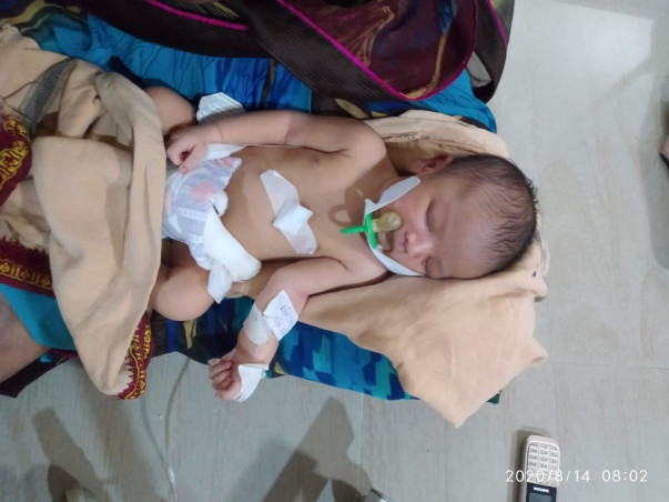 Support Baby Of Srija Recover From Interstitial Cystitis
