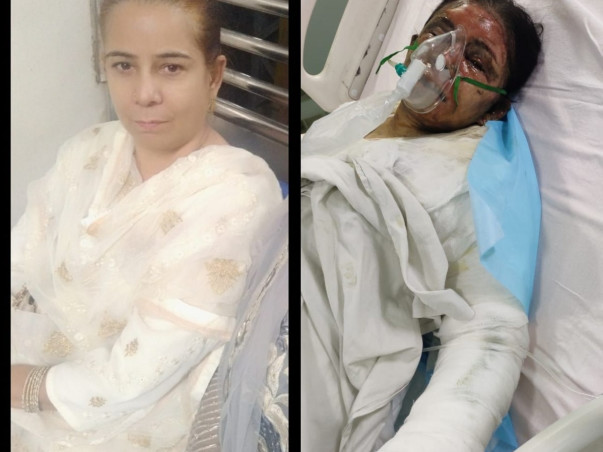 Support Nagma Memon Recover From Severe Burns