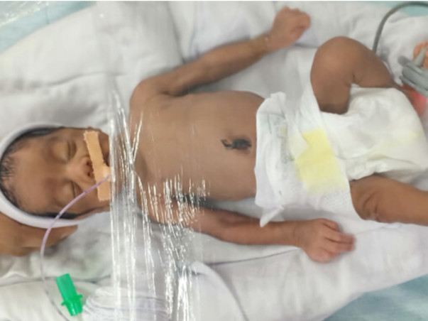 4-month-old Ansiya Will Not Survive Without Ventilator Support .