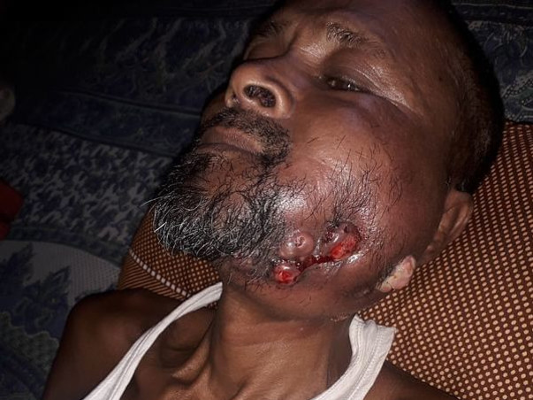 Support Fulruddin Mandal Recover From Oral Cancer