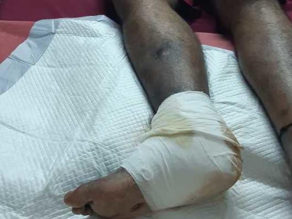 56 Years Old Jitesh Kamdhar Needs Your Help Fight Gangrene