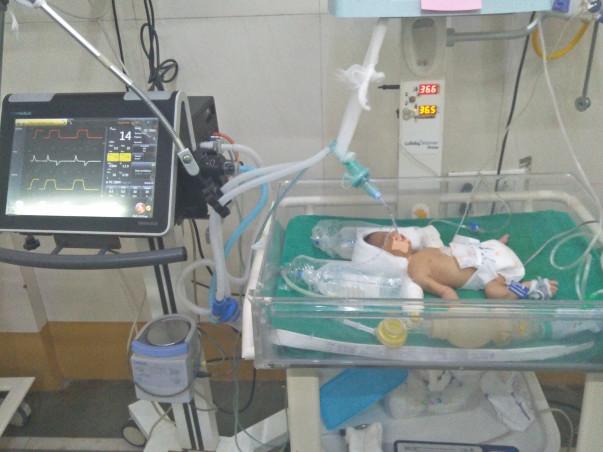 Support Baby Of Punam Pankaj Bhaleroa Fight From Premature Baby