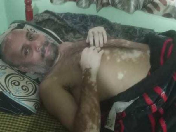 Support Rajesh Singh Thakur Recover From Mental Retardation & Vitiligo