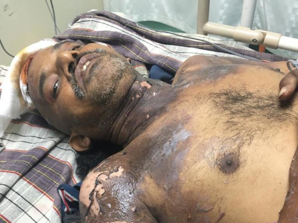 Help To A Person Name Satibabu Fight From Spinal Dysraphism
