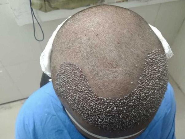 Help My Son Fight Alopecia