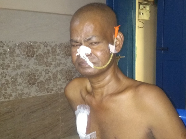 Please Help My Father is Suffering from Stomach Cancer