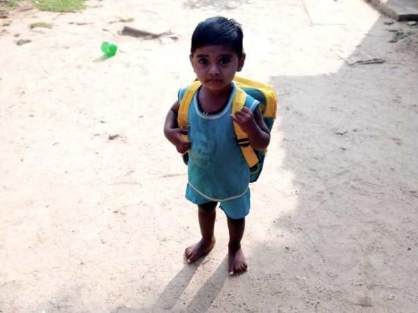 2 years old Rishi Kumar needs your help fight Chronic kidney disease with Uremic encephalopathy