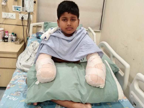 This 11 years old needs your urgent support in fighting 4th degree electrocution burn in both hands