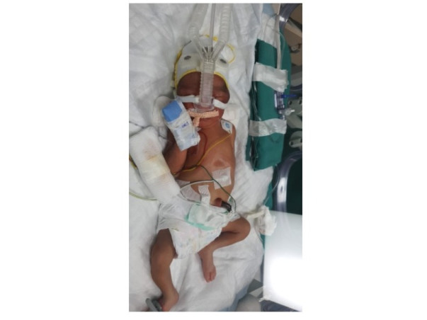 Support Baby Of Namrita Newton To Recover From Preterm Birth