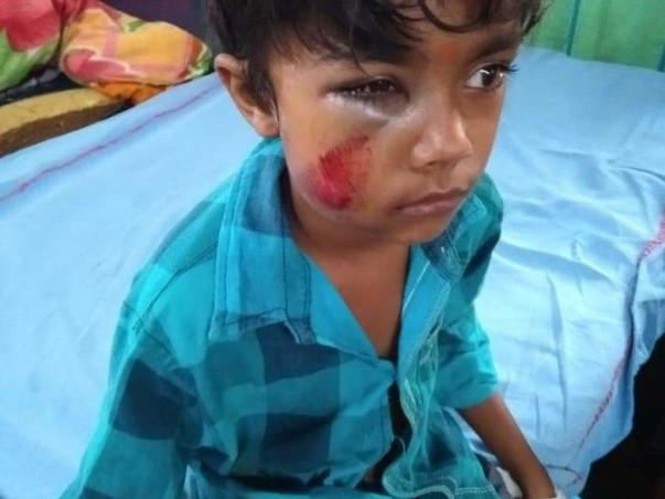 Help Little Kunal Survive
