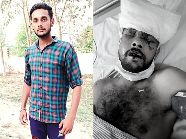 Aakash condition is severe. Please help us save his life.