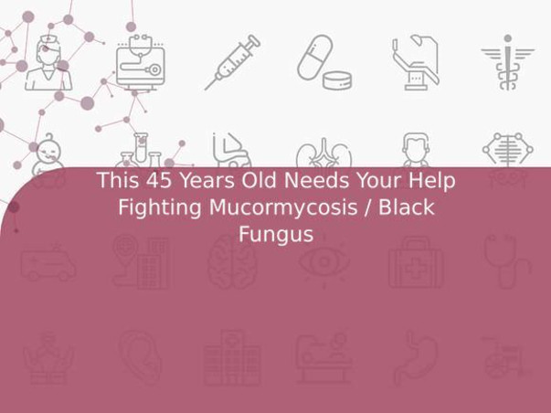 This 45 Years Old Needs Your Help Fighting Mucormycosis / Black Fungus