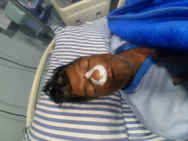 Gopal Gupta Is Suffering From Mucormycosis(Black Fungus) So Help.
