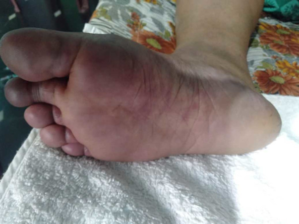 HELP MY WIFE TO SAVE HER INFECTED LEGS