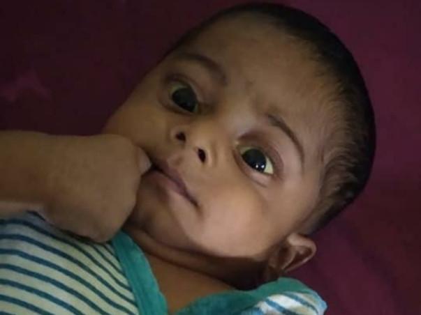 Save Adharv ( Biliary atresia,Liver transplantation)