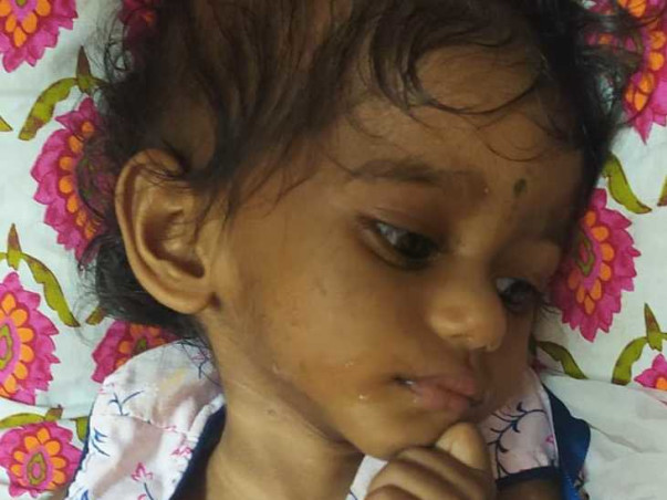 2 Years Old Agasthiya Needs Your Help To Recover From Brain Tumor
