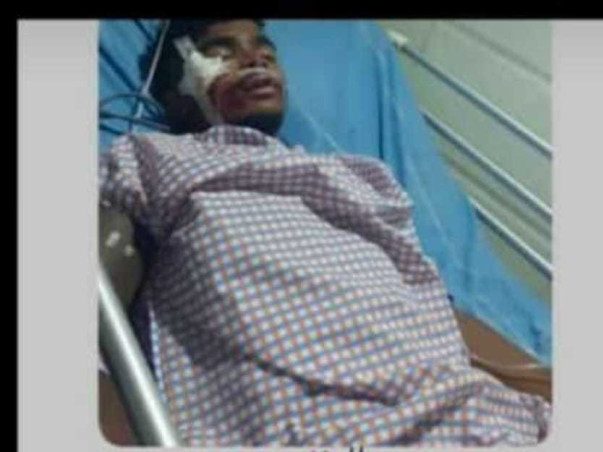 Help Bandameedi Chandu Recover From Road Accident