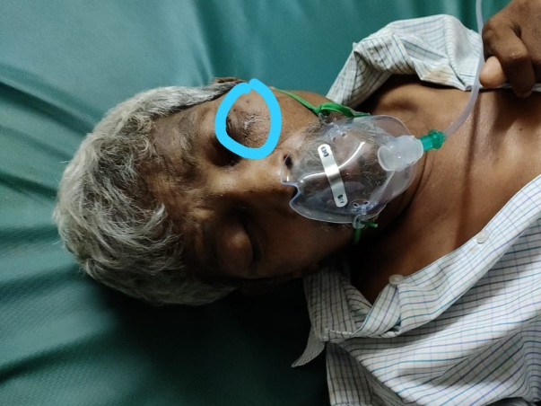 Help Durga Prasad Rao With Covid And Black Fungus(Mucormycosis) Relate