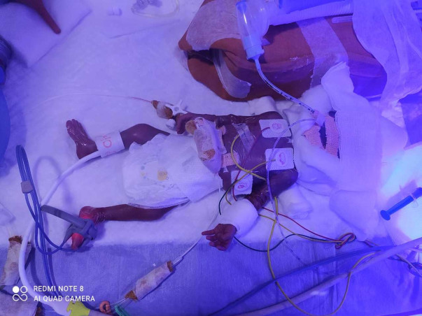 SUPPORT NANDINI TO SAVE HER PREMATURE BABY