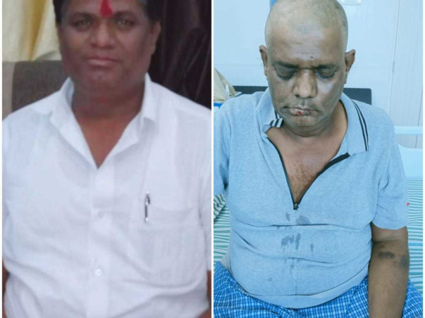 48 years old Santosh Roham needs your help fight Covid complication & loss of Eyesight