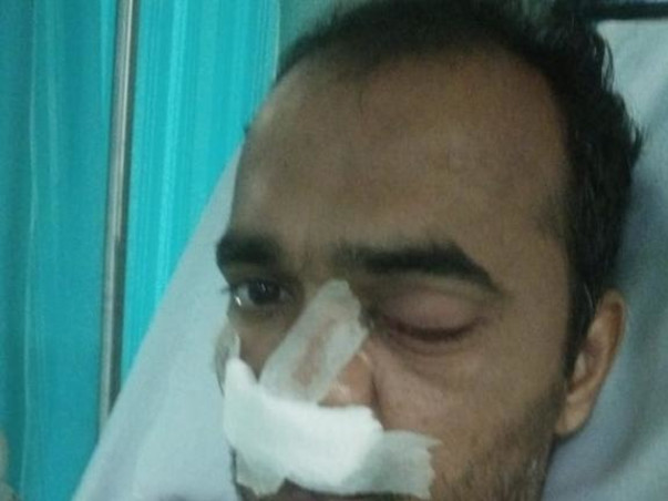 Help Kondal Reddy Recover From Mucormycosis(Black Fungus)