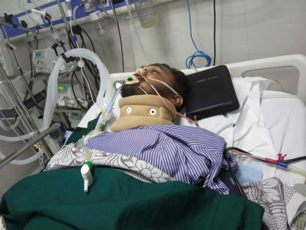 Help My Husband To Recover From Brain Arteriovenous Malformation