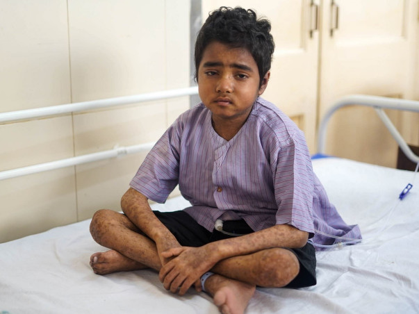 He Needs Your Help To Survive This Post-Transplant Complication