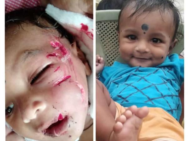 Help Arjun Kumar 8months Old Boy Bitten By Mad Dog