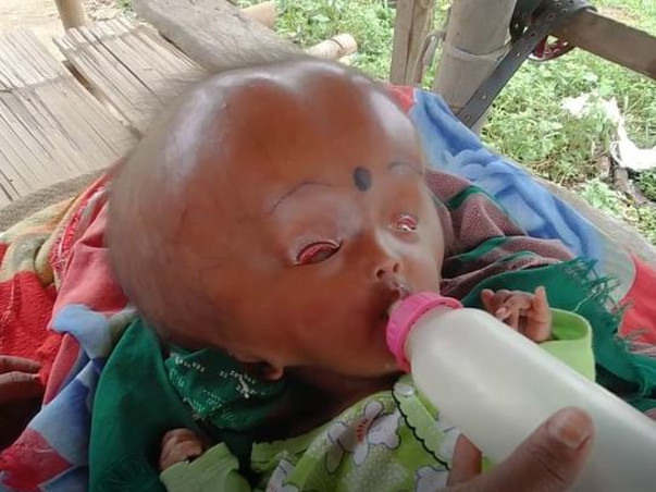 9-Month-Old With Watermelon Sized Head, Needs Urgent Surgery To Live!