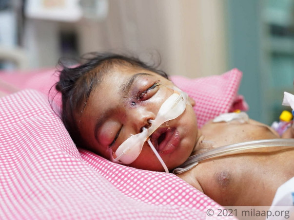 6-Month-Old Charanaya Needs Your Help To Survive