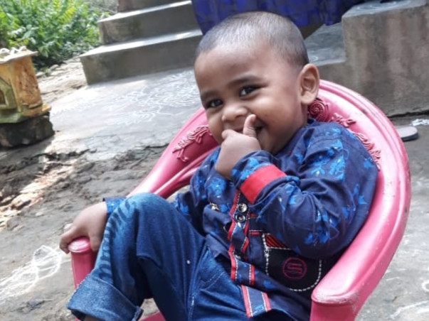 4 Years Old Rohith Needs Your Help Fight Deep Scald Burns