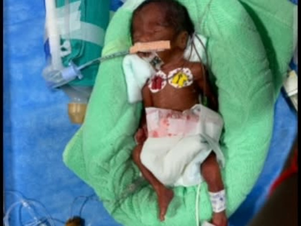 8 Days Old baby of Revati eeds Your Help To Recover From Preterm Birth
