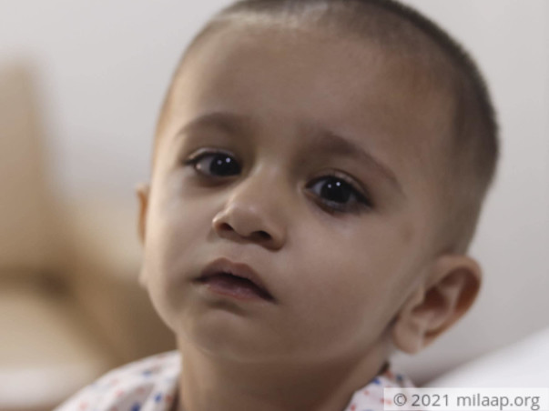 1-Year Old Suffers From 4 Heart Defects, He Needs Urgent Surgery