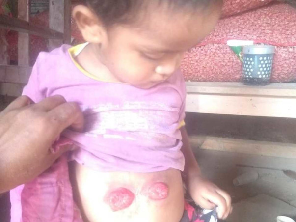 9 Months Old M.d Hanjala Needs Your Help Fight Anorectal Malformations