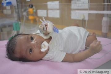 help-baby-of-chhaya